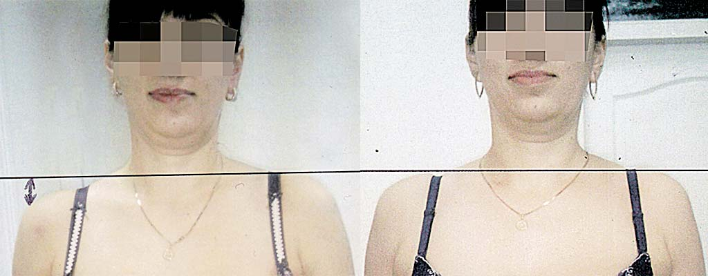 Молодість вашого організму залежить від стану вашого хребта