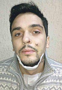 Пошматували ножем язик сину волонтера з Бершаді. Чому одному із них так і не оголосили про підозру?