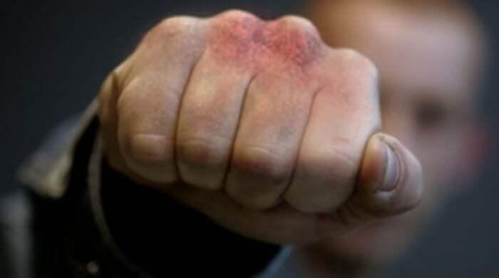Побили та пограбували громадянина Німеччини у Могилеві-Подільському