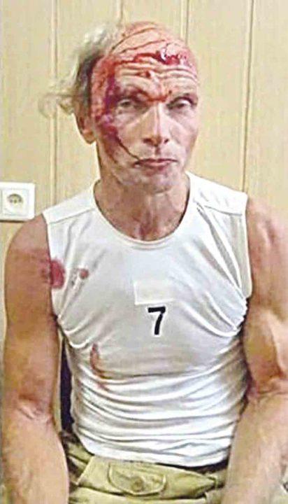 Ветерана АТО побили на Майдані. Тепер його судитимуть ніби за дрібне хуліганство