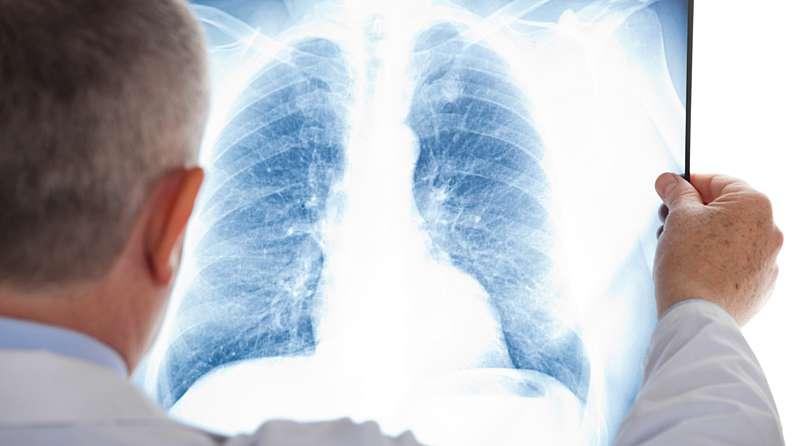 У Вінницькій області збільшилась кількість хворих з пневмонією