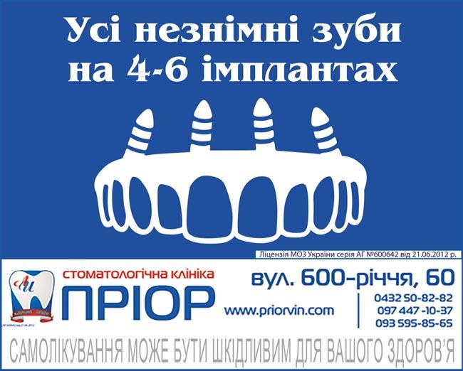 Усі незнімні зуби на 4-6 імплантах