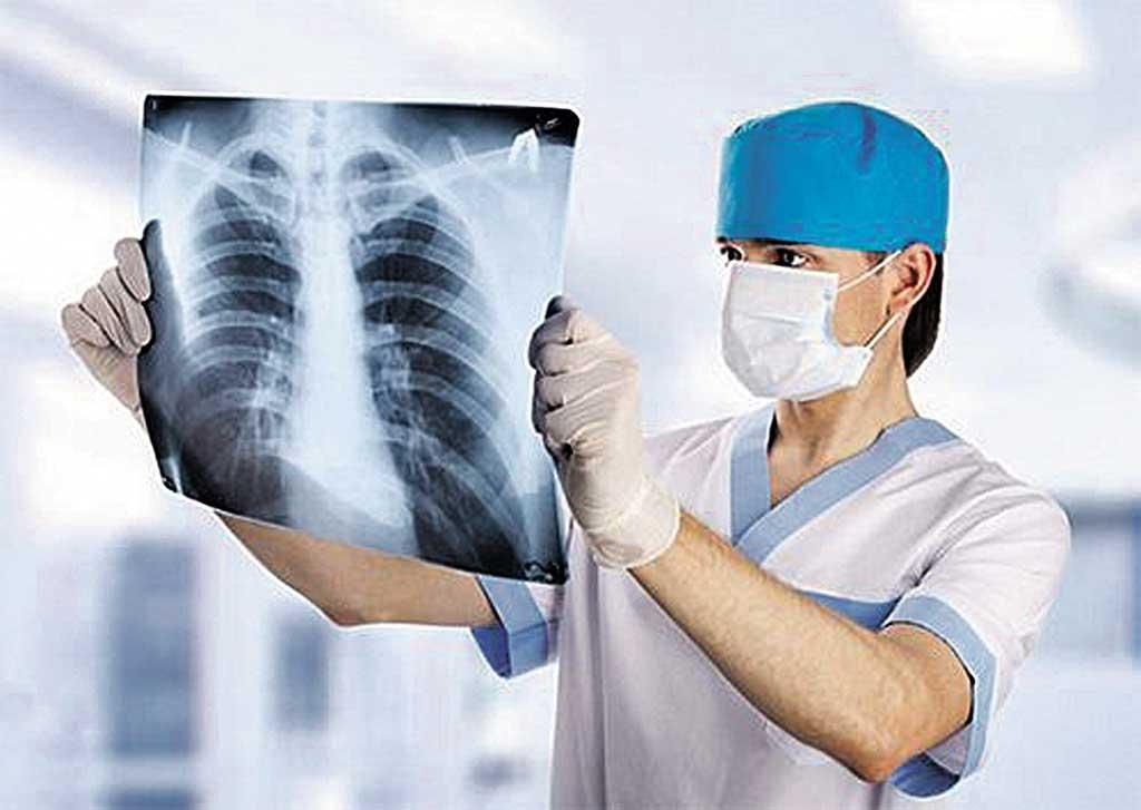 Туберкульоз поширюють вінницькі заробітчани