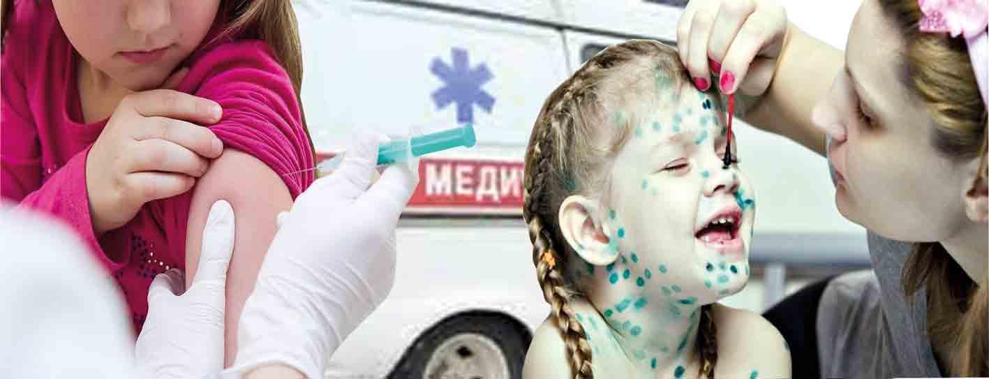 Епідемія кору наближається? Захворіли 93 вінничанини за тиждень
