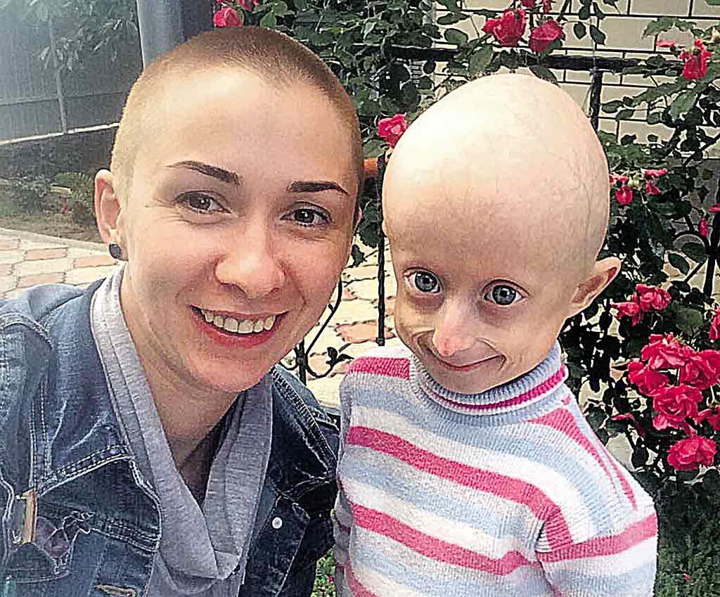Волонтерка постриглась «налисо», щоб підтримати свою подругу Іринку Химич